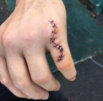Sbk, Sykes mostra il dito ricucito