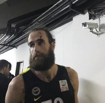 Basket: Datome colpito da un oggetto in testa