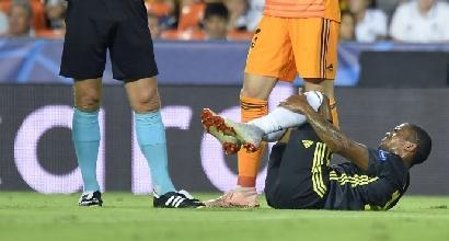 Juve, forte trauma distorsivo alla caviglia e distrazione agli adduttori per Douglas Costa
