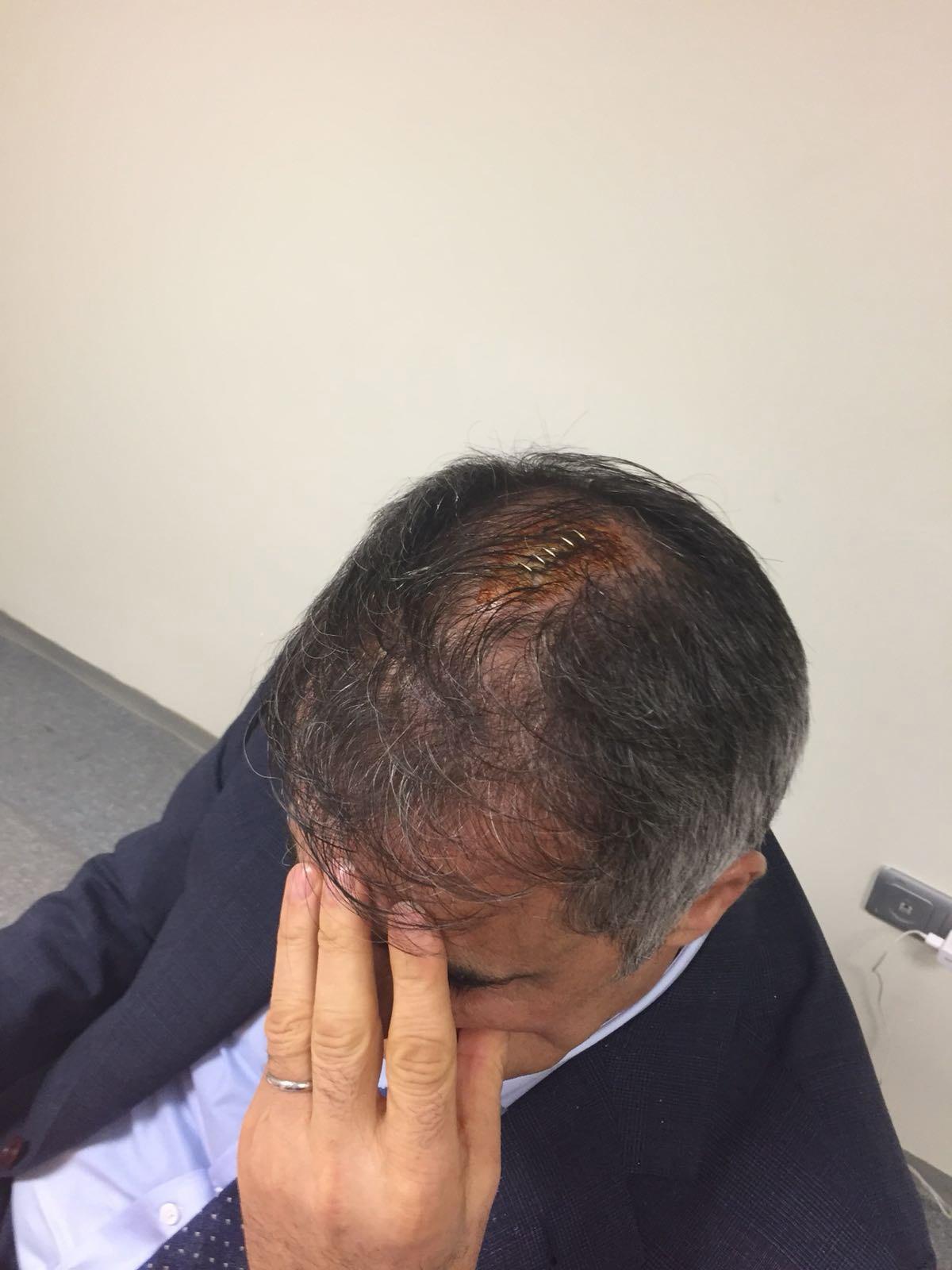 Turchia: Gunes in ospedale colpito da un seggiolino