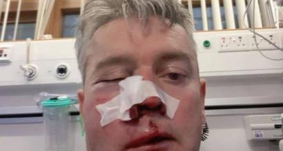 Irlanda, arbitro aggredito a fine gara da tre giocatori: mascella rotta