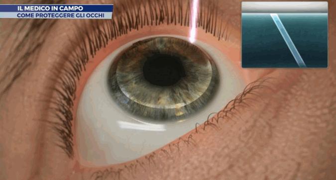 Medico in campo, come proteggere gli occhi negli sport di contatto: parla il dottor Francesco Carones
