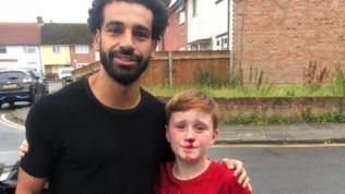 Salah, foto col bambino insanguinato: si è spaccato il naso per salutarlo