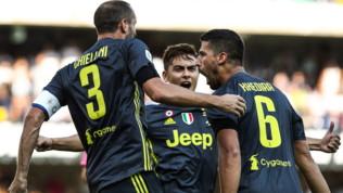 Juventus, contro il Parma vecchie conoscenze: Dybala o Higuain, Khedira e De Sciglio