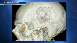 La chirurgia 3D e le applicazioni nello sport