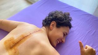 Ana Carrasco, foto horror dopo l'intervento alla schiena